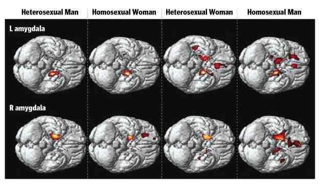 Brain scans o f homosexuals